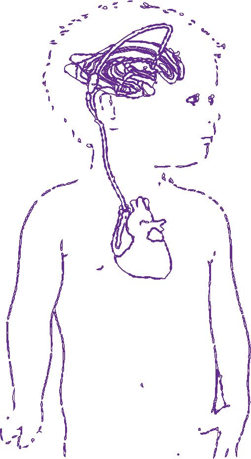 Hidrocefalia - Derivacion del liquido cefalorraquideo atrial