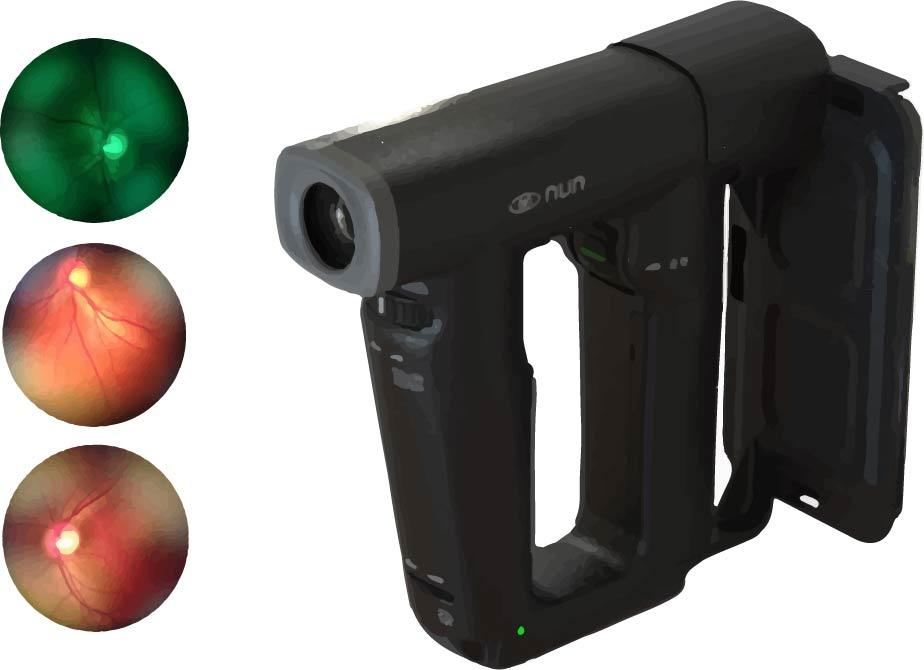 Oftalmoscopio NUN