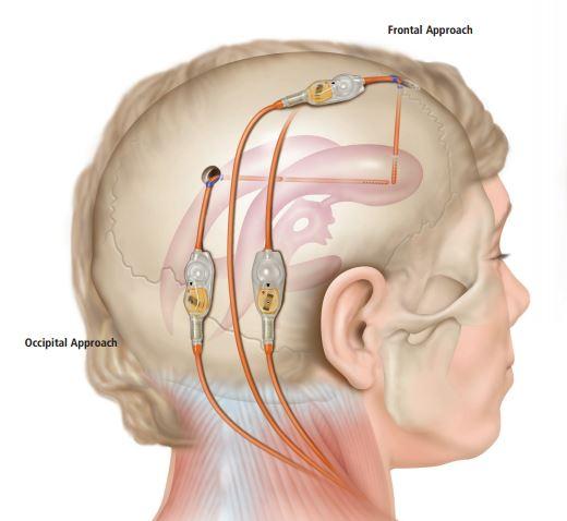 ¿Que es una válvula de hidrocefalia?