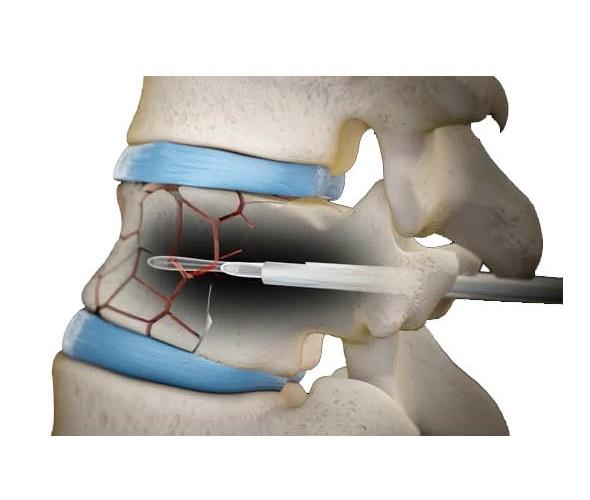 Cifoplastía preparado de vertebra con el Balón