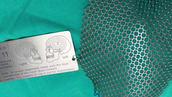 Mallas de titanio para craneoplastía