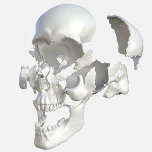Cómo se realiza un implante en 3D